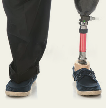 A persons legs from the knee down. One pant leg is pulled up to reveal a below-knee prosthesis.